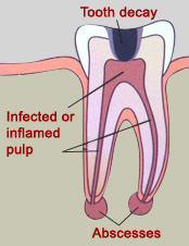Dental Emergency Tooth Extraction