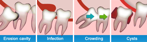 Wisdom Teeth Removal at Wisdom Dental Emergency Melbourne