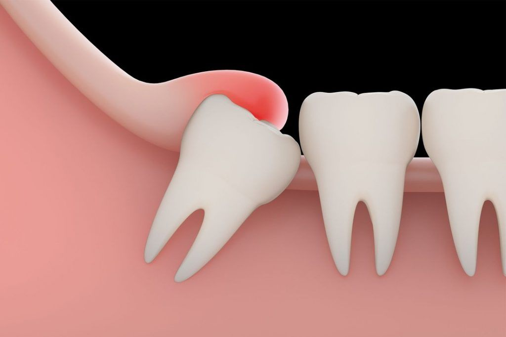 A Guide To Avoid Dry Socket After Wisdom Teeth Removal Wisdom Dental Emergency